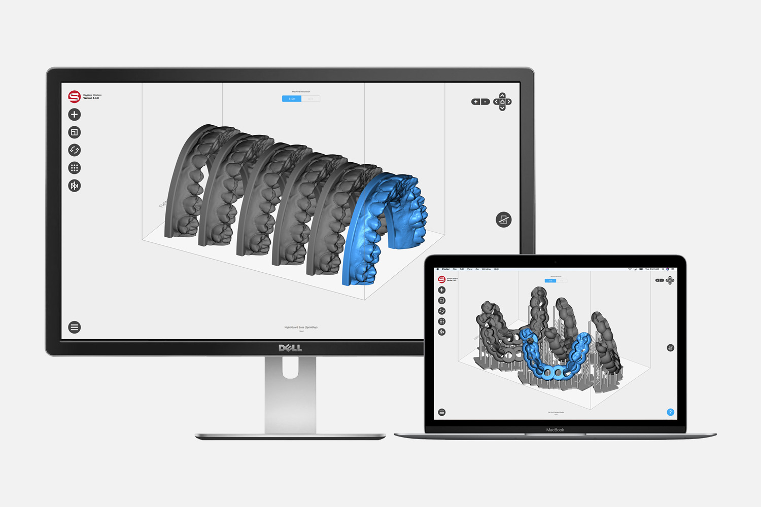 Our 3D dental printer's SprintRay software makes printing simple