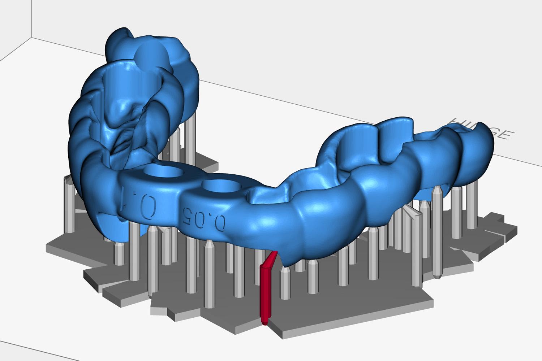 SprintRay's 3D dental printer software features easy-tear technology