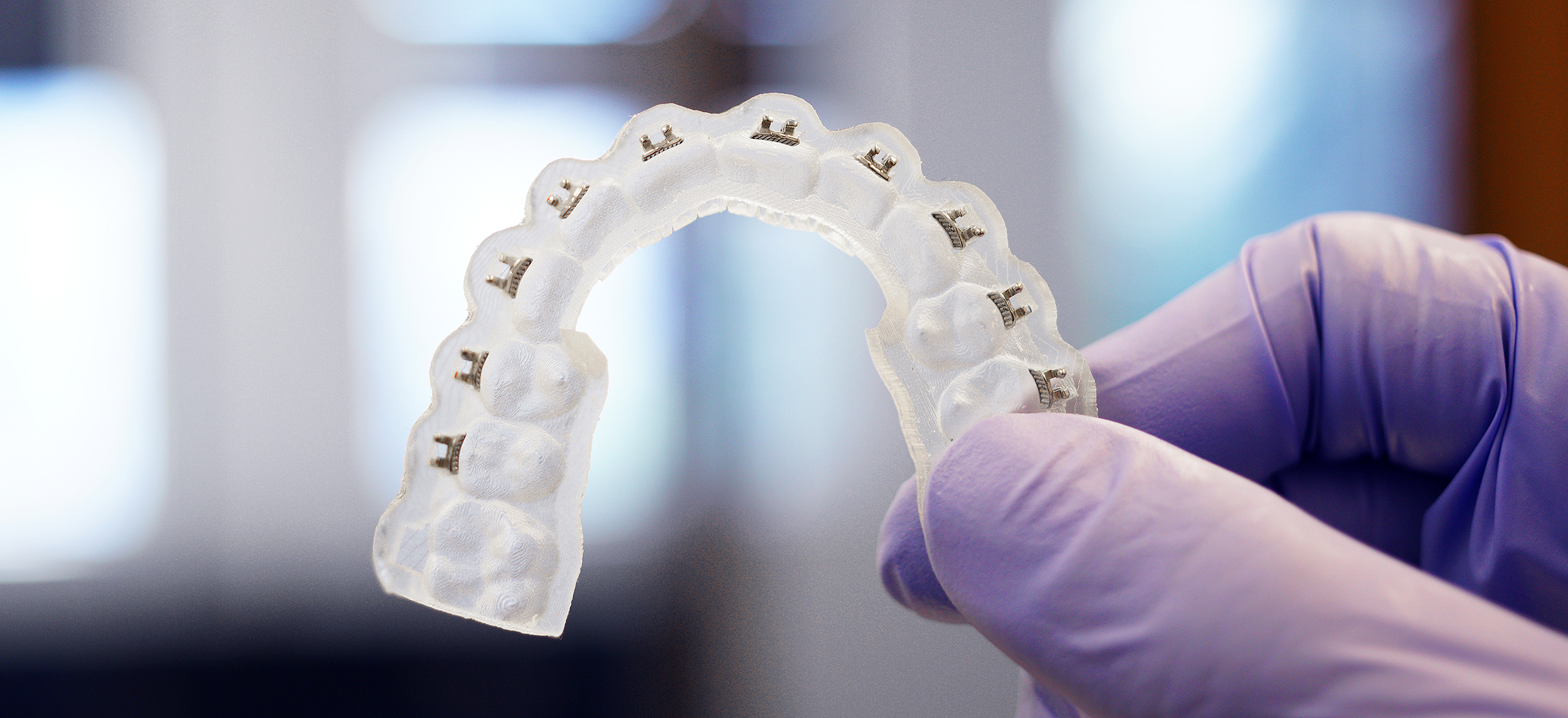 3d printed orthodontic appliance