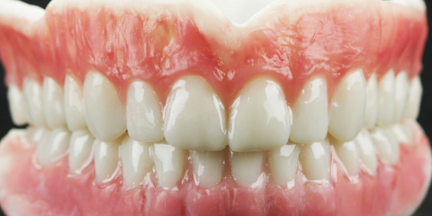 3d printed eco denture