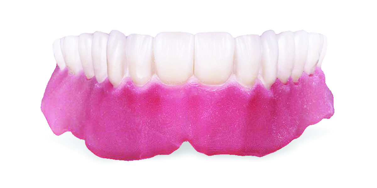 hybrid 3d printed denture final