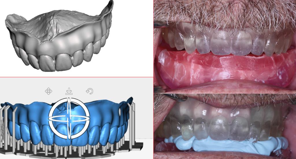 sprintray-3d-printer-digital-denture