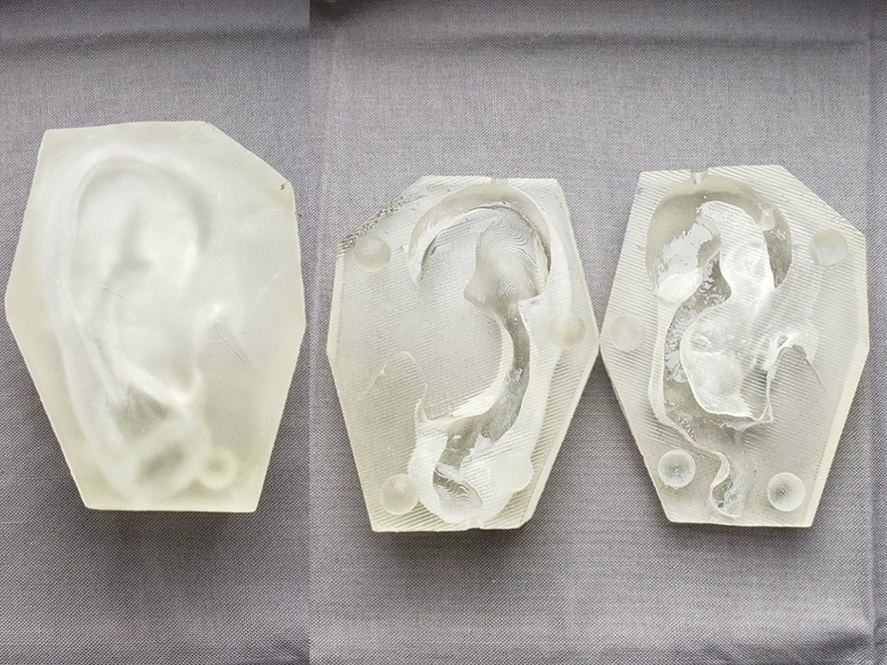 3d printed prosthetic ear