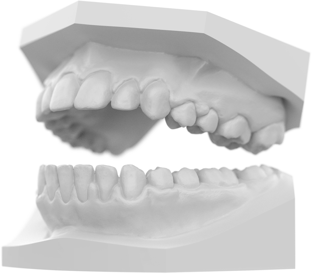 Image of 3D printed dental model with SprintRay study model white resin